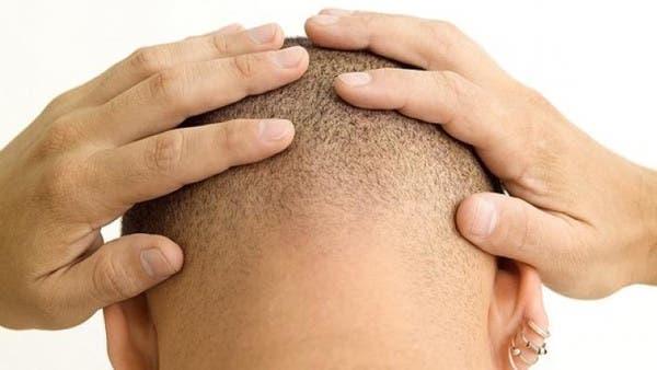 تقنية جديدة لزرع الشعر ومكافحة