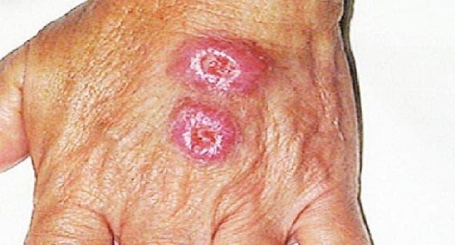 مرض جلدي يؤدي إلى تآكل اللحم يفتك بعناصر #داعش 83e1b495-d838-4ea7-a52d-64d3981e1787