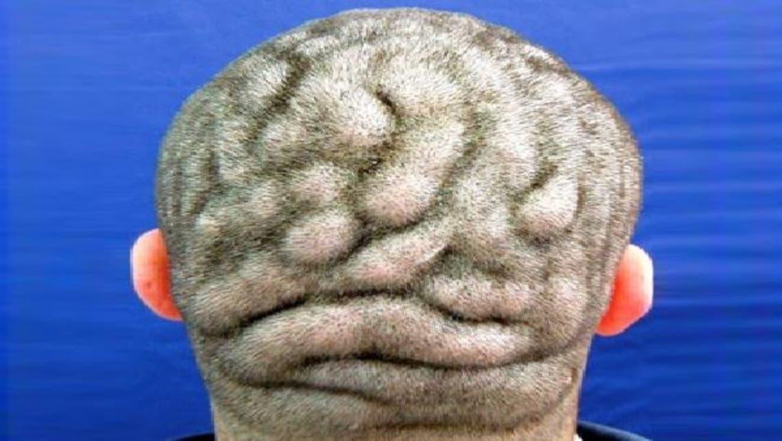 رجل يعاني من حالة مرضية نادرة تجعل رأسه مثل المخ