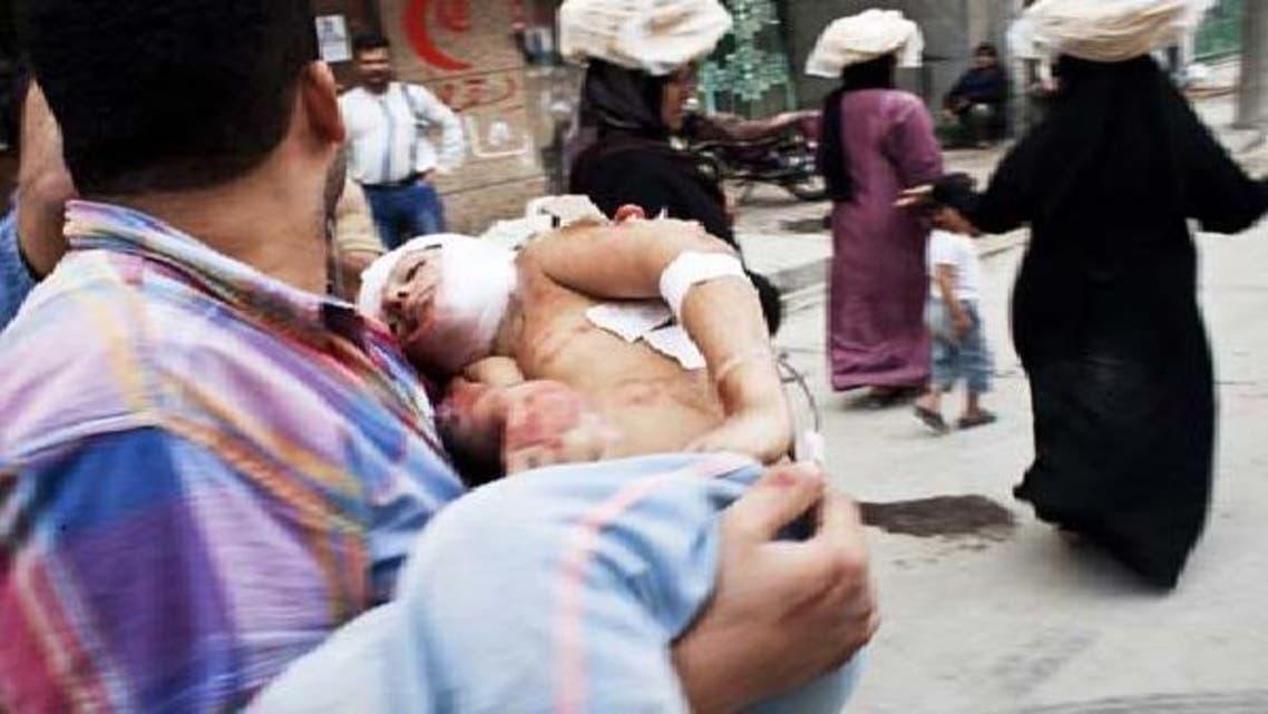 حلب میں ایک شخص لڑائی کے دوران زخمی ہونے والے بچے کو اٹھائے لے جا رہا ہے
