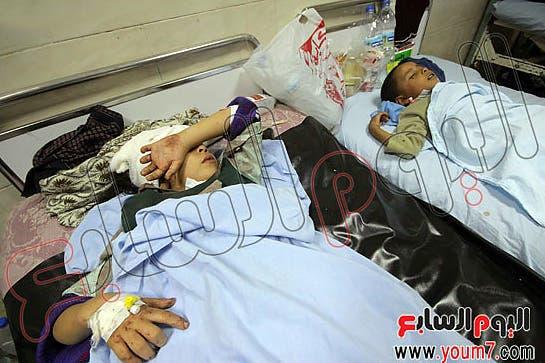 طفلان يخضعان للعلاج، نقلا عن اليوم السابع