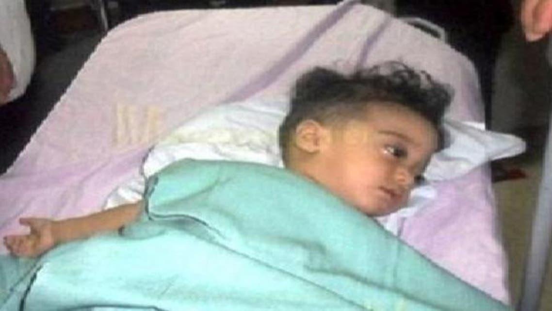استخراج جنين من بطن رضيع في اليمن بجراحة نادرة
