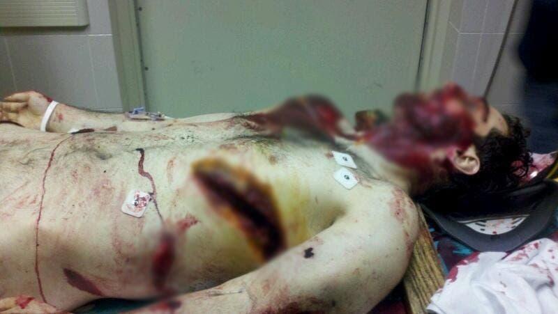 الصورة الأولى للمشتبه به وهو قتيل