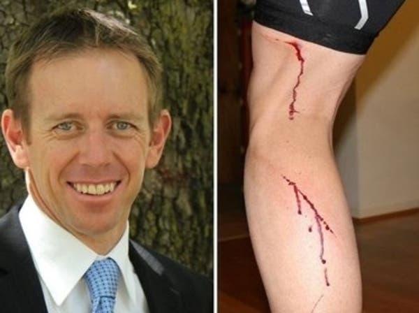كنغر انزعج من نائب أسترالي مدافع عن البيئة فأشبعه ضرباً