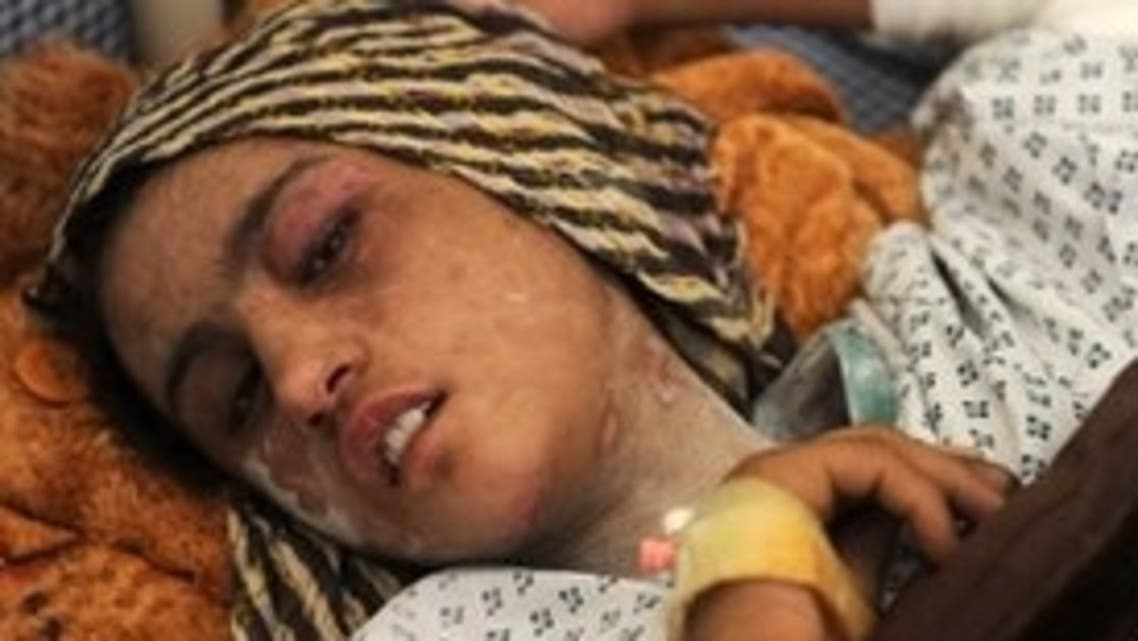 Sahar's injuries caused public outcry in Afghanistan AFP