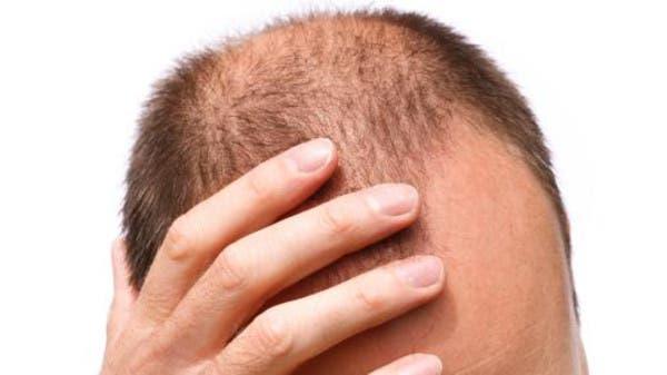 ماذا يحدث للأصلع بعد زراعة الشعر؟ 89aebb04-1c95-4fc7-bb0d-a220c3a2d2c8_16x9_600x338