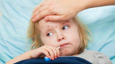 الصحة العالمية: 34 ألف إصابة بالحصبة بأوروبا هذا العام