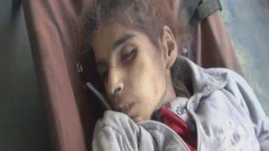 وفاة 48 شخصاً جوعاً في مخيم اليرموك منذ بدء الحصار
