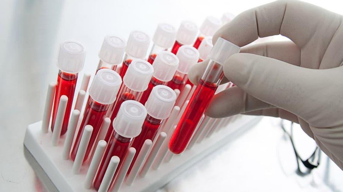 مختبر فحص دم تحليل
