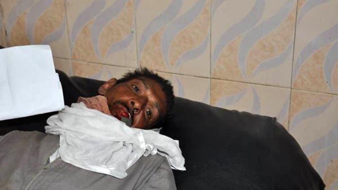 """احتجاجاً على إزالة """"كشكه"""".. مصري يغلق فمه بقفل حديدي"""