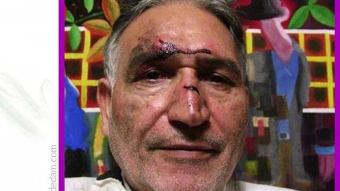 نوری زاد زخمی