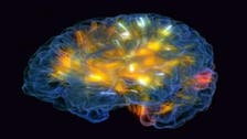 فيديو يظهر تقنية عمل الدماغ ودوران الأفكار بداخله