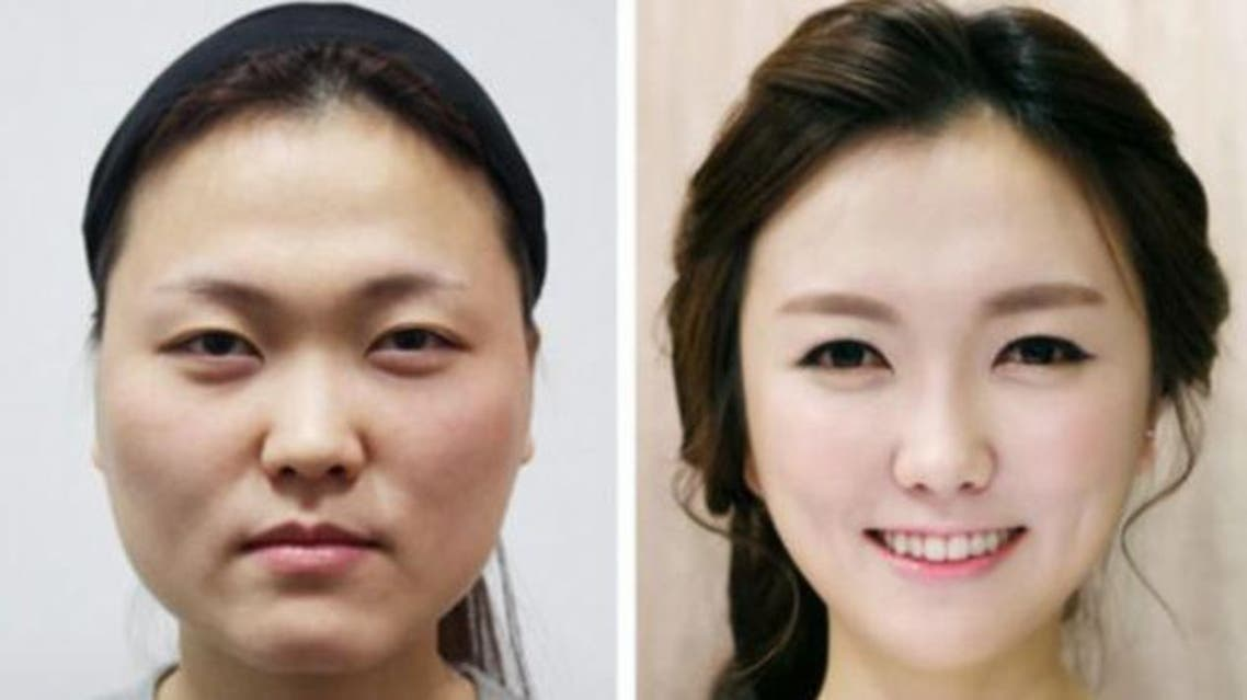 حل جديد لمرضى الجراحة البلاستيكية عمليات التجميل