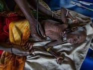 ترمب يعد بـ 300 مليون دولار لمكافحة المجاعة