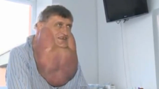 Video: doctors remove 6kg tumor from Slovakian man's face
