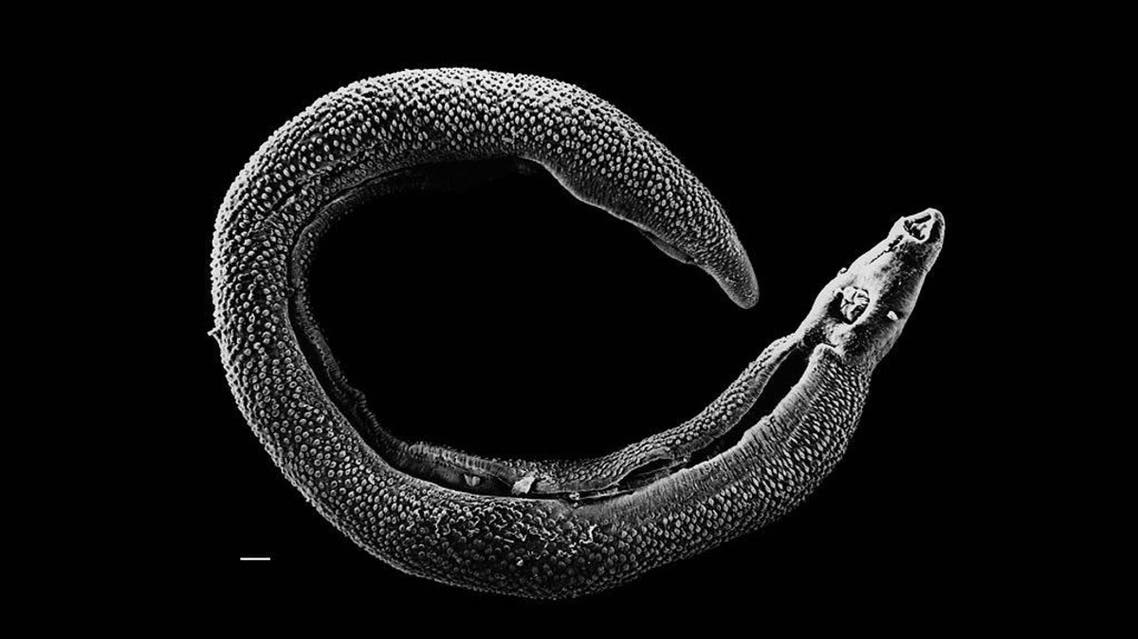 Electron micrograph of an adult male Schistosoma parasite worm. (Photo courtesy of Wikimedia Commons)