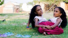 Indian conjoined twins find love with the same man