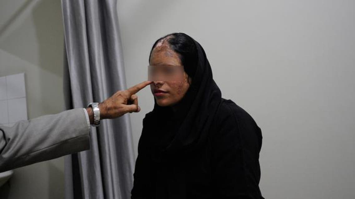 Tahira, 28, an acid attack survivor, is photographed during an appointment for reconstructive surgery at a hospital in Karachi December 14, 2011. (Reuters)
