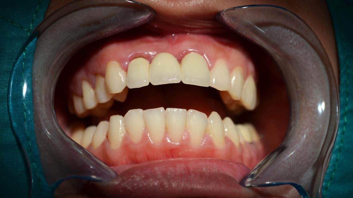 teeth shutterstock