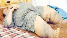 Medical team asks obese Saudi man to 'wait for death at home'