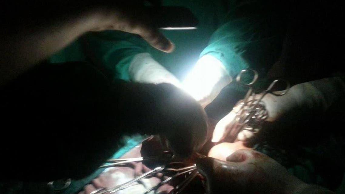 عملية جراحية في مصر على ضوء الجوال بعد انقطاع الكهرباء