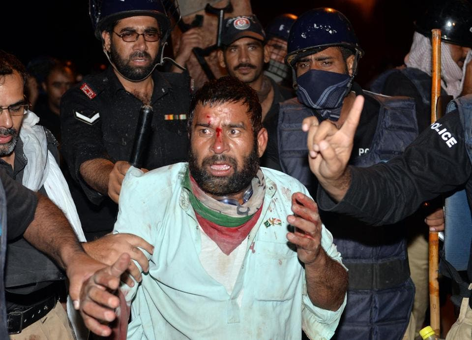 injured pakistan afp