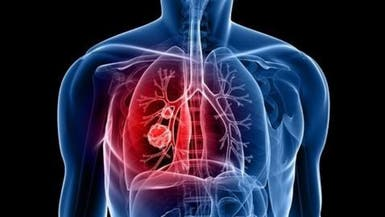 اختبار يرحم مرضى سرطان الرئة من إجراء جراحي خطير