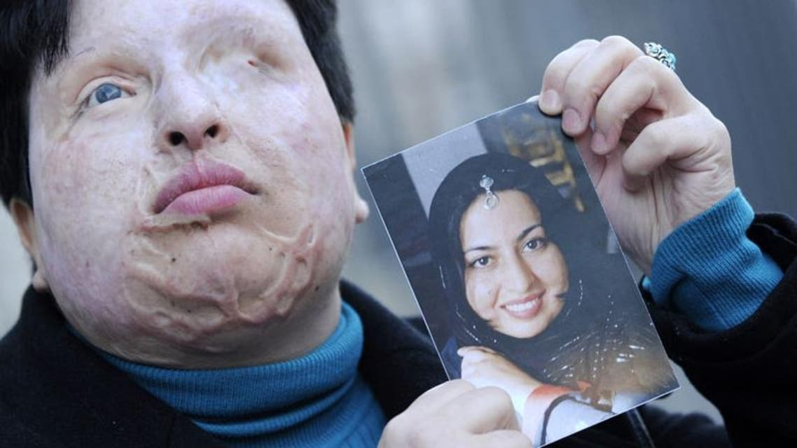 Victim Ameneh Bahrami before and after she was attacked with acid. (AFP)