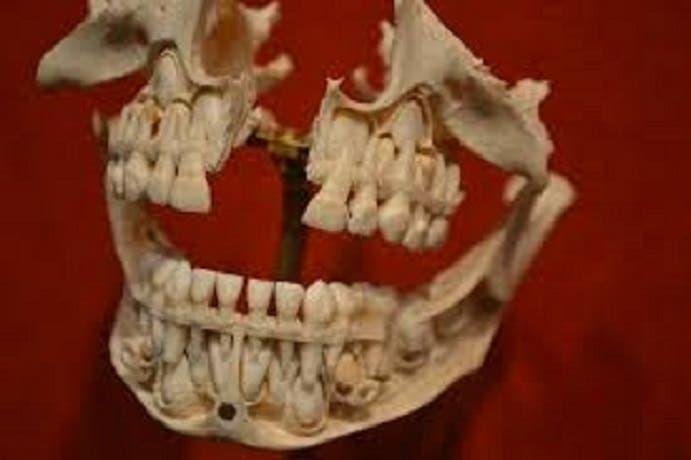 طقم أسنان آخر كان يستخدمه جورج واشنطن ويسبب له آلاما كبيرة