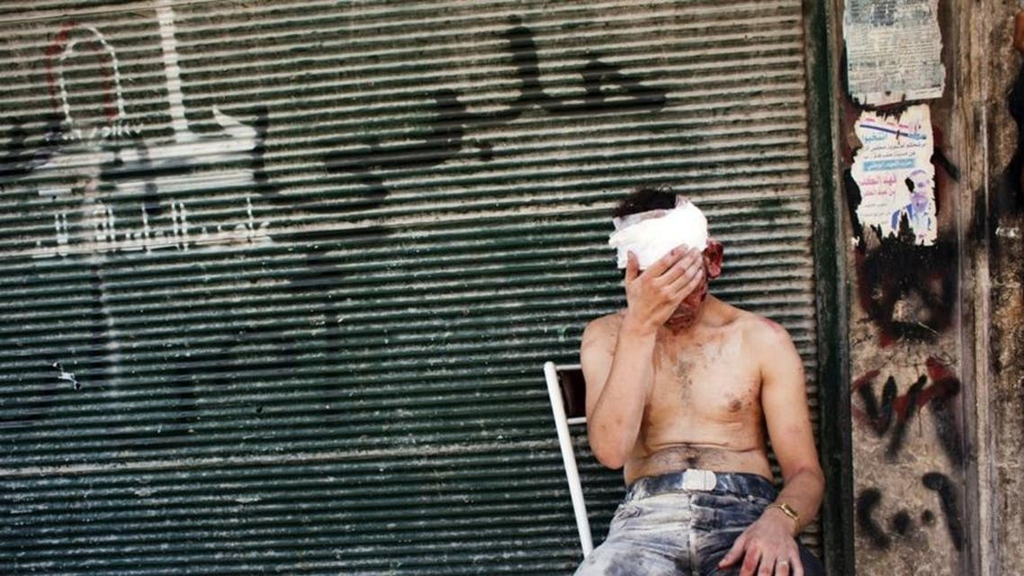 A man wounded by shelling sits on a chair outside a closed shop in the Al-Muasalat area of Aleppo, Syria. (File photo: AFP)