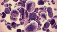 Study: two thirds of cancer types due to 'bad luck'