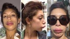 'Teen Mom' star Farrah Abraham reveals botched lip job on Twitter