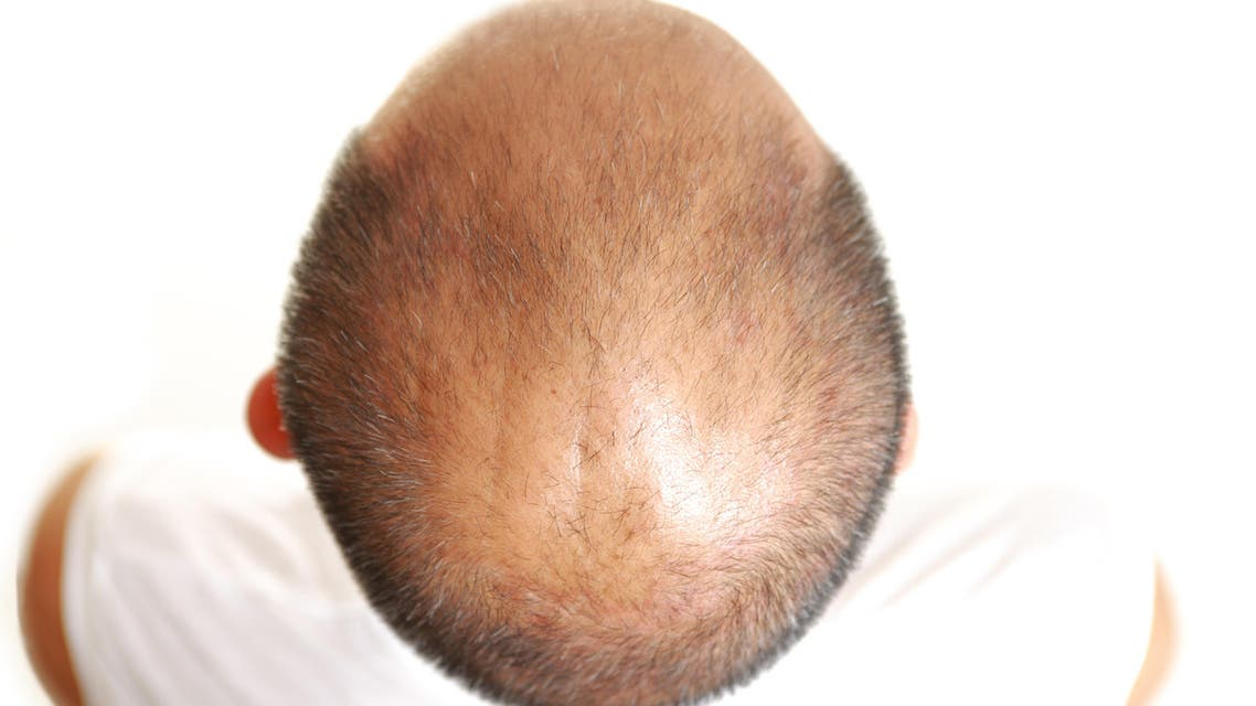 Scientists say they might have found a cure for baldness (Shutterstock)