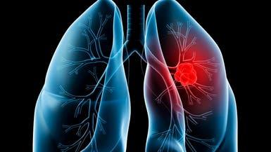 دواء جديد لعلاج سرطان الرئة