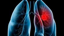 الدهون المشبعة قد تسبب سرطان الرئة