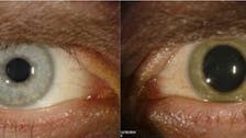 Shocking photo shows how Ebola lingers in eye of a survivor