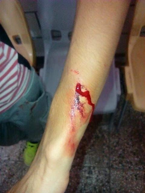 إصابة مسعود الساري