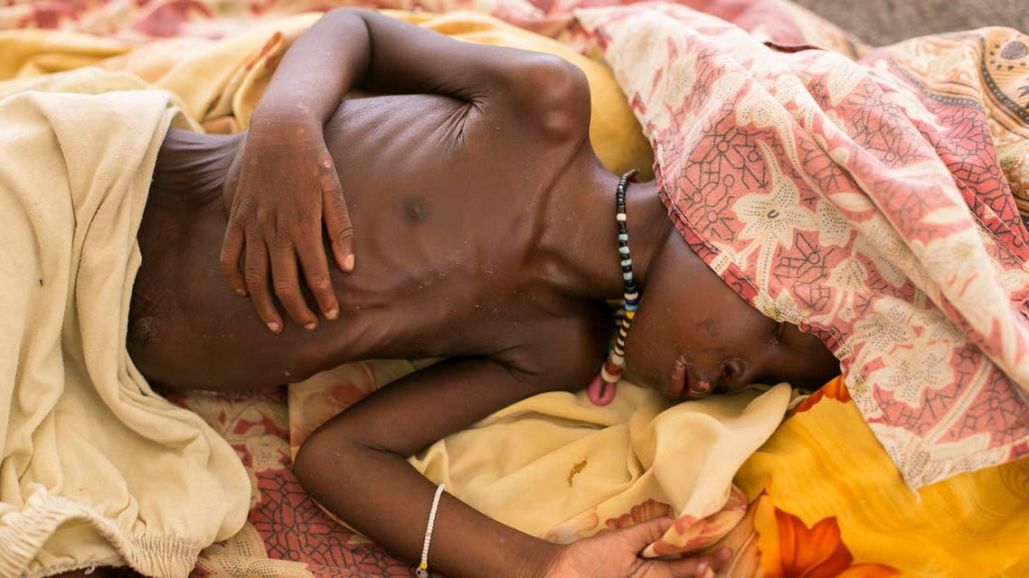 A severally malnourished child lies on the bed at MSF hospital Bentiu, South Sudan, Thursday, July 3, 2014. Acute malnutrition and water born diseases are the main contributors to poor children's health in Bentiu camp. Another issue is the lack of water with most only receiving 7-8 litres a day of fresh water, many turn to water from unsafe sources. (AP Photo/Matthew Abbott)