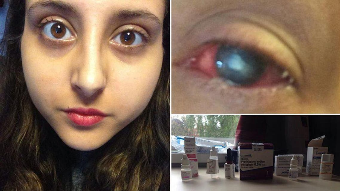 Jessica Greaney's infected eye