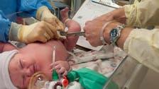 تأخير قص الحبل السري يسمح بتدفق مزيد من الدم للمولود