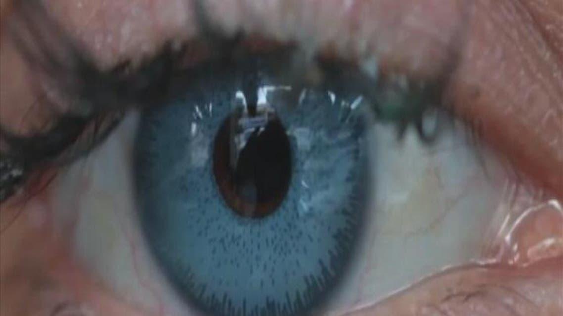 THUMBNAIL_ العدسات اللاصقة قد تسبب البكتيريا في العين