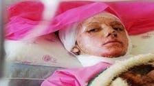 #إيران .. القبض على متهم بقضية حرق النساء بالأسيد