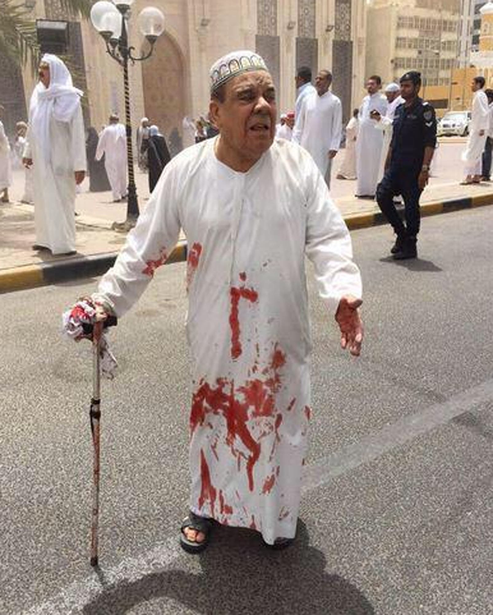 This image provided by Kuwaitna news shows a man in a blood-soaked dishdasha following of a deadly blast at a Shiite mosque in Kuwait City, Friday, June 26, 2015.  (AP)