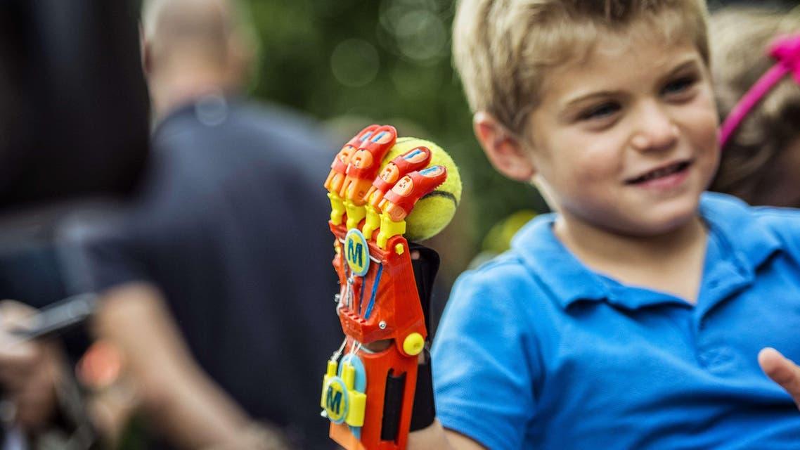 طفل فرنسي يحصل على يد اصطناعية بطابعة ثلاثية الأبعاد