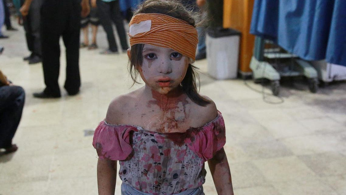 A wounded Syrian girl looks on at a make shift hospital in the rebel-held area of Douma, east of the capital Damascus, following shelling and air raids by Syrian government forces on August 22, 2015. (AFP)