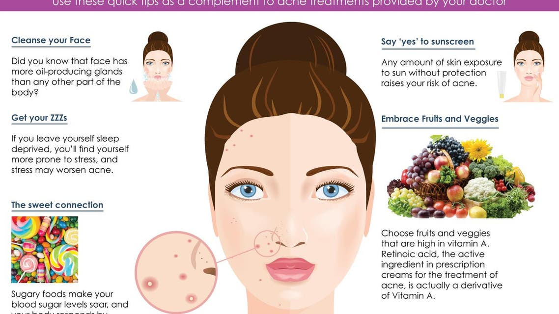 Infographic: Simple tips to fight acne