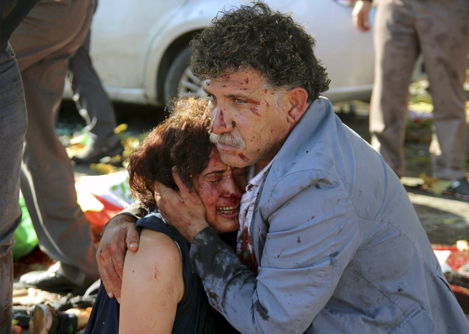 An injured man hugs an injured woman after an explosion during a peace march in Ankara. (Reuters)
