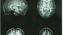 مفاجأة.. نشاط الدماغ يفوق ما كان متوقعاً!