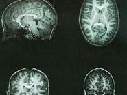 اكتشاف عصب يشعر بالخطر قبل حدوثه بـ200 جزء من الثانية