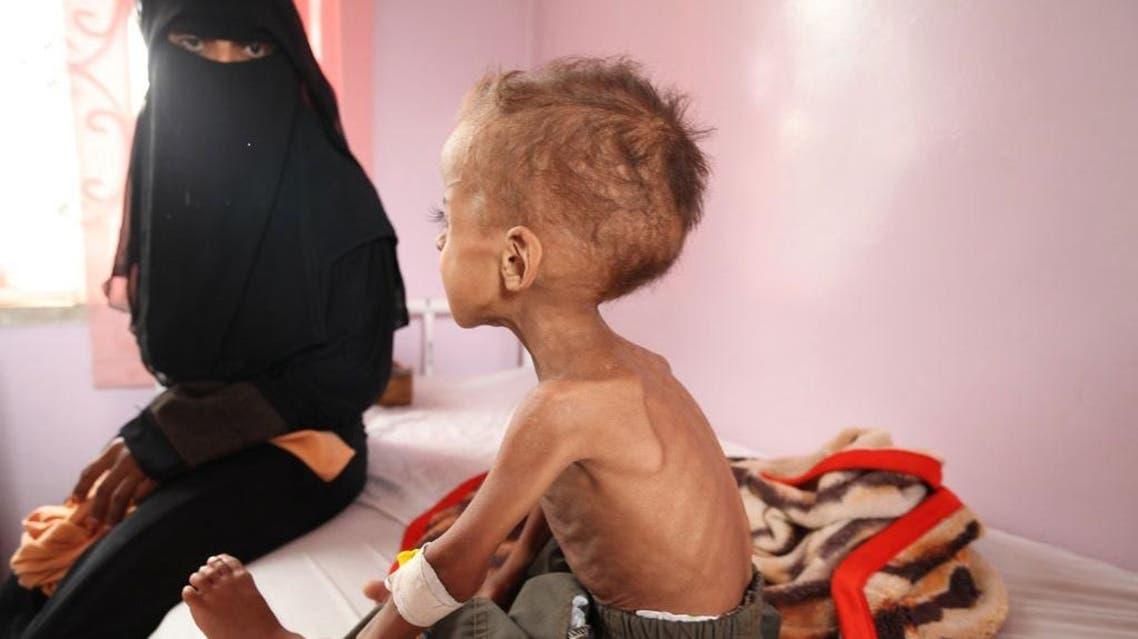 يمن - أزمة غذاء - مجاعة